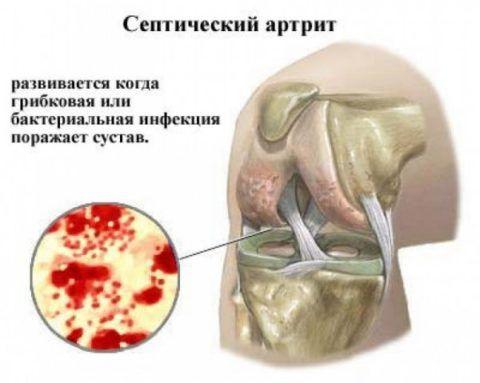Септический артрит провоцирует инфекция в организме