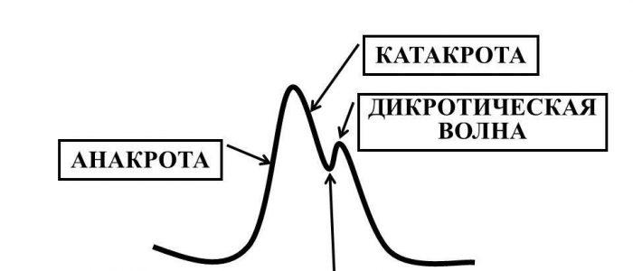 Дикротическая форма пульса