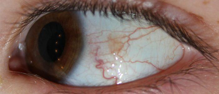 Красные глаза и давление
