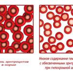 Сидероахрестическая анемия