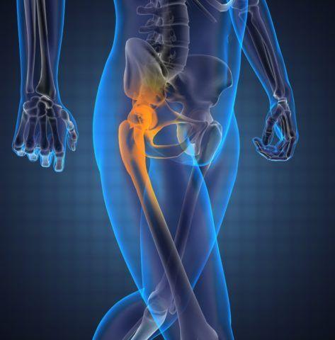 Синовит — это воспалительный процесс оболочки вокруг сустава