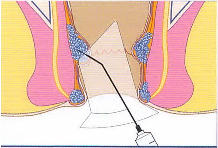 Склерозирование узлов геморроя