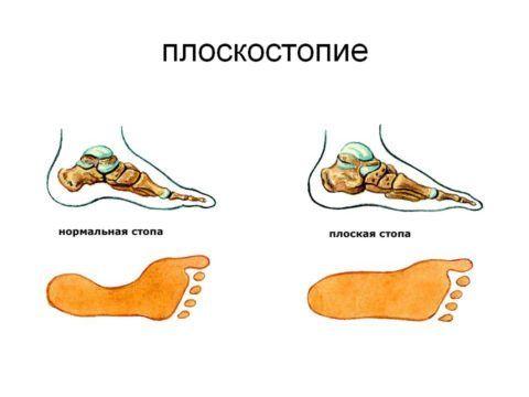 След стопы: норма и патология