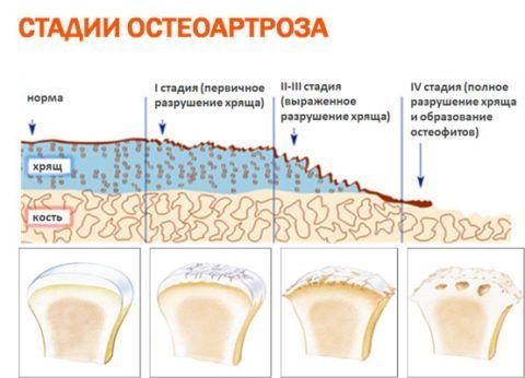 Состояние больного остеопорозом ухудшается от стадии к стадии.