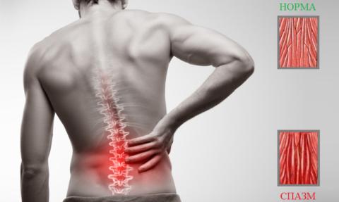 Спазмирование мышечных пучков – одна из причин хронической боли в спине или шее