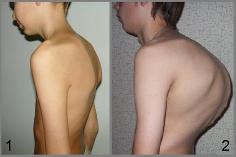 Стадии развития юношеского гиперкифоза