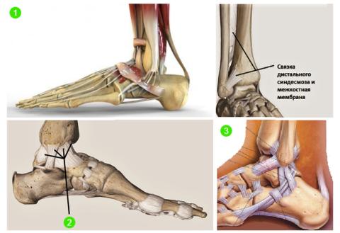 Сухожилия мышц вокруг голеностопа (1), Дельтовидная связка (2), связки и сухожилия наружной части голеностопа (3)