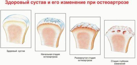 Существует 3 основные стадии (на фото) развития остеоартроза.
