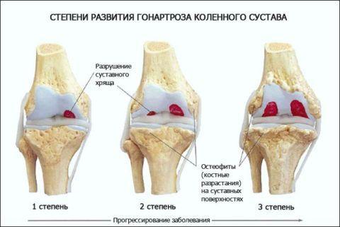 Существует 3 основные стадии развития посттравматического артроза колена.