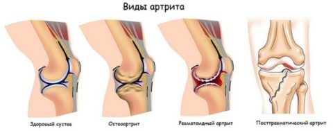 Существует множество видов артритов. Каждый вид проявляет себя по-своему и лечится также.