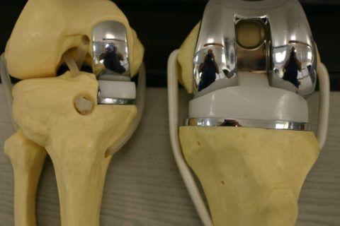 Существует несколько видов протезов (как на фото).
