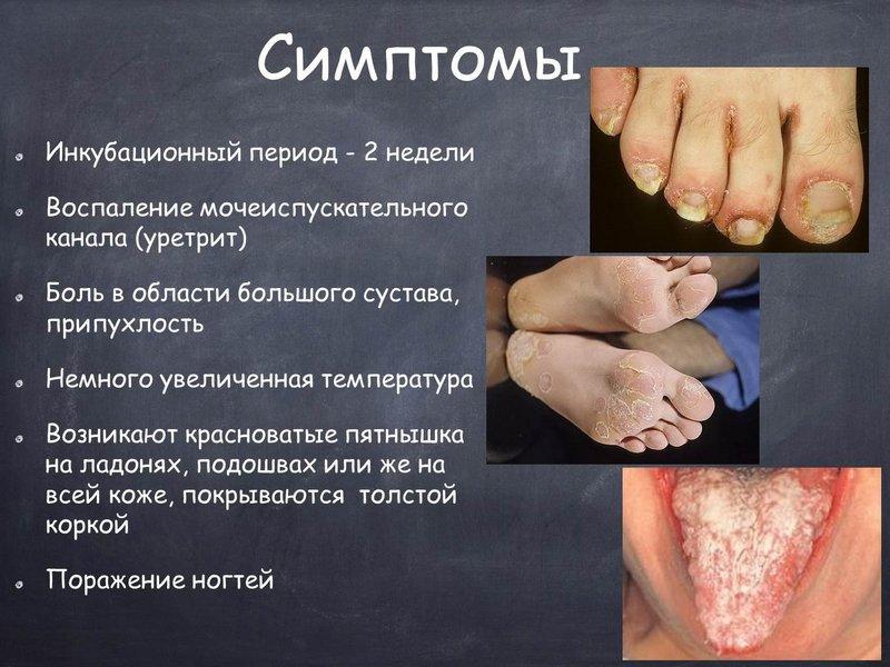 Симптомы синдрома Рейтера
