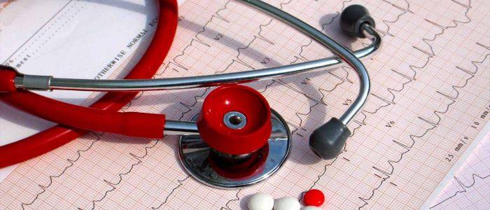 Причины и лечение тахиаритмии