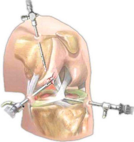 Так выглядит ход артроскопической операции внутри.