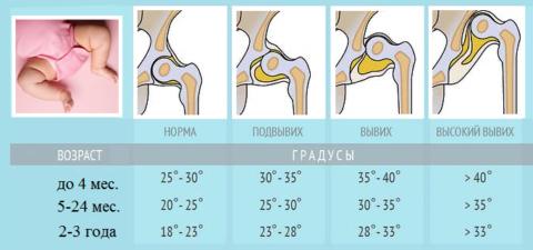 Тарирование норм и патологических отклонений при дисплазии в тазобедренном суставе