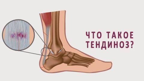Тендинозом называются дистрофическо-дегенеративные изменения в мышечных сухожилиях и связочном аппарате сочленений, которые обычно проходят без воспалительного процесса.