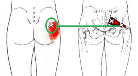 Точка, помогающая снять боль в пояснично-крестцовом отделе