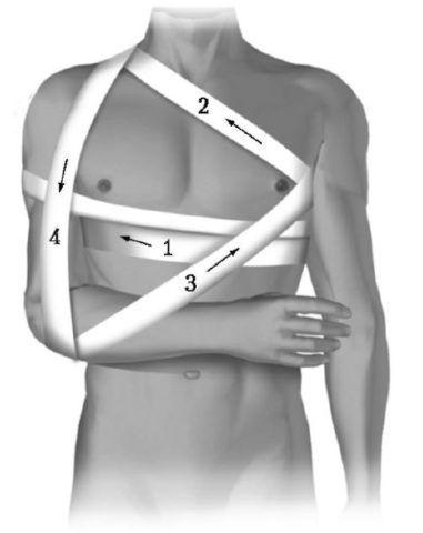 Травма ключицы, на фото техника наложения повязки Дезо