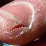 Трещины кожи