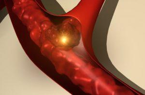 Синусоидальная тахикардия