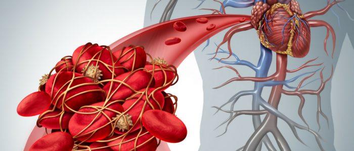 Тромбоэмболия при мерцательной аритмии