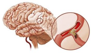 Причины и лечение приступа тахикардии