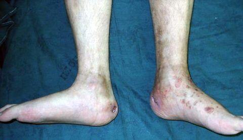 Туберкулезное поражение голеностопного сустава и пяточной кости