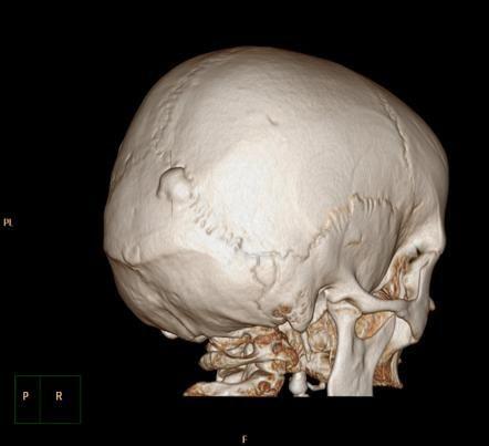 Твердая форма – плотное образования внутри имеет костные пластины.