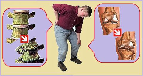 У подавляющего большинства людей уже к 40 годам обнаруживаются признаки спондилеза