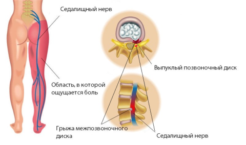 Ущемление корешка в пояснице и ишиас – результат давления межпозвонковой грыжи