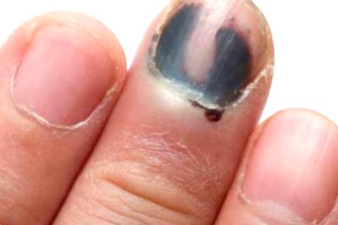 Ушиб ногтевой фаланги