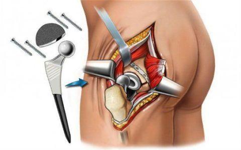 Установка протеза