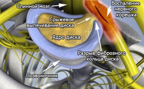 В 90 % случаев ущемление нервного корешка – это давление грыжи межпозвонкового диска