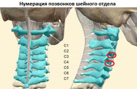 В красных овалах – поражённые диски-«виновники» ощущения кома в горле