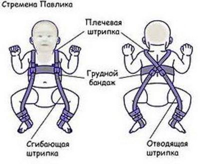 В лечении дисплазии таза у малышей часто используют стремена Павлика.