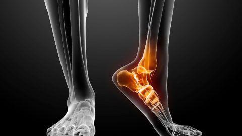 В случае разрушения сустава есть возможность заменить его на искусственный