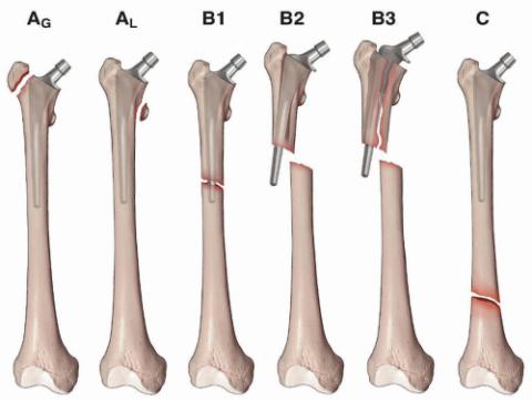 Виды перипротезных переломов бедренной кости