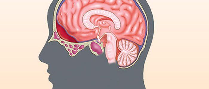 Гипертензия головного мозга