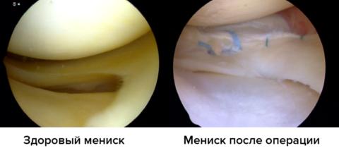 Во время оперативного вмешательства врач проводит сшивание связок. Швы можно рассмотреть на картинке справа, они имеют синий оттенок.