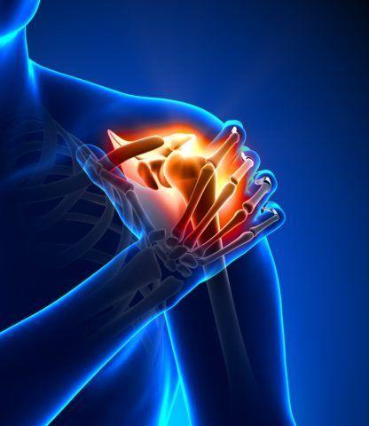Воспаленные сухожилия плечевых мышц вызывают болезненные ощущения во время движений