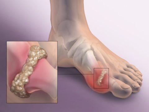 Воспаленный сустав большого пальца стопы