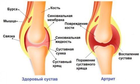 Воспалительный процесс при артрите коленного сустава сопровождается болью