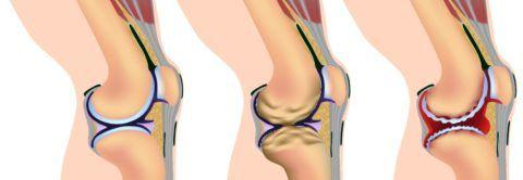 Список заболеваний колена огромен