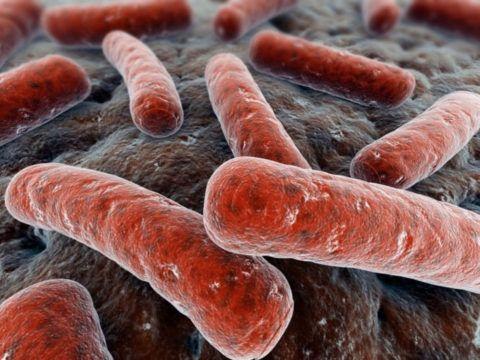 Возбудитель туберкулез – палочка Коха.