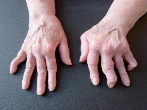 Возникновения артрита после ангины или ОРВИ