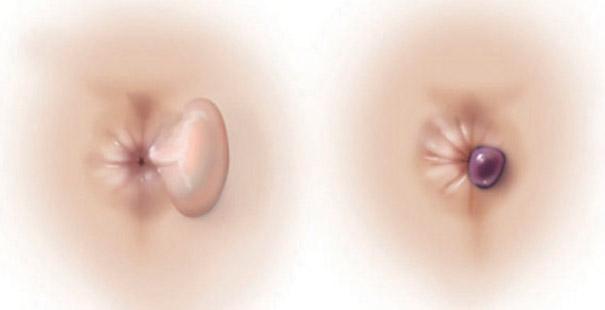 Вылез геморроидальный узел