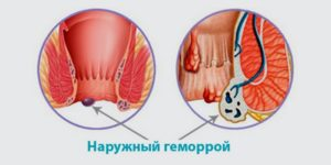 Выпала геморроидальная шишка