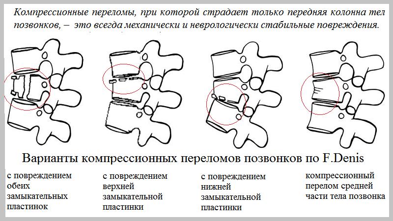 Компрессионный перелом поясничного позвонка – классификация вколоченных типов (АI)