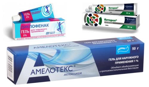 Эффективные гели при радикулопатии (диклофенак, кеторолак, мелоксикам)