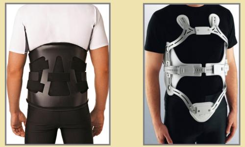 Ортопедические ортезы и рамки, обеспечивающие жесткую фиксацию позвоночника